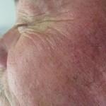 RJ#6 08-05-11 (7 weeks post MMS)